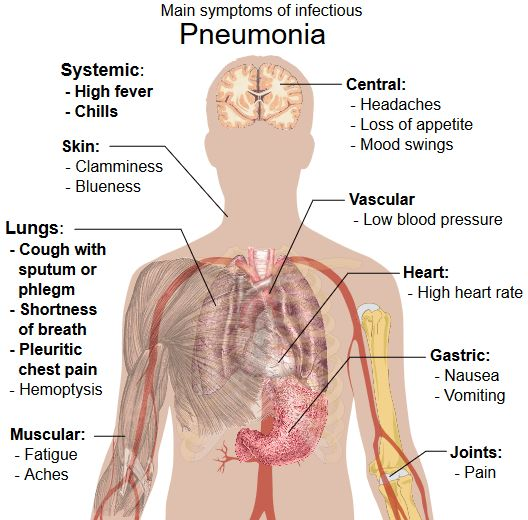 Medical Bed For Pneumonia Prevention